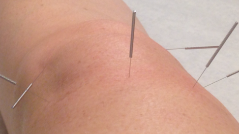 Hej akupunktur!