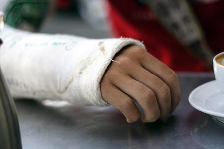 broken_arm