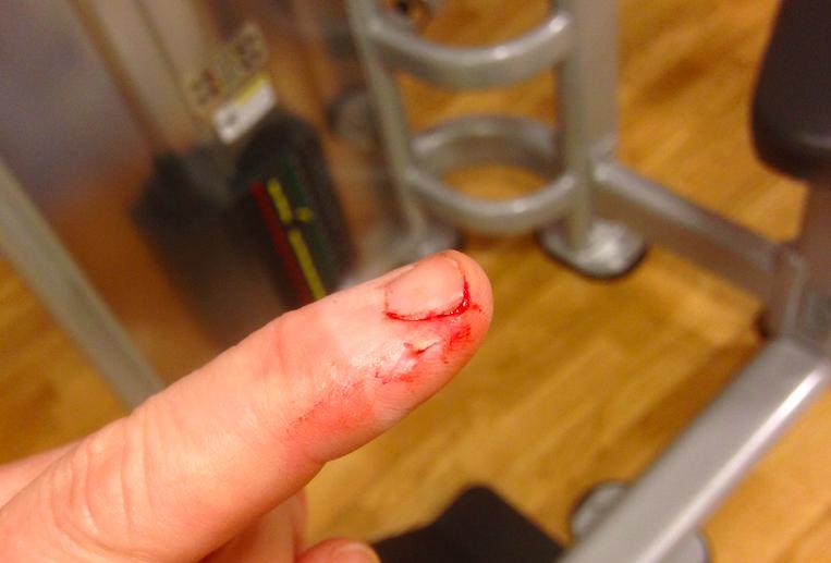 blodigtfinger