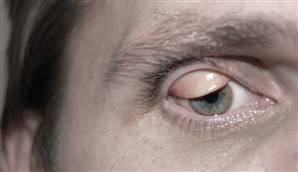 svullet ögonlock vagel
