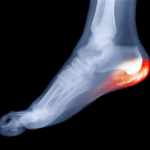 foot-xray-pain-resized-600